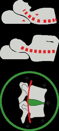 Postura scorretta per dormire con cervicale
